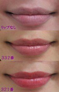 しばこ唇拡大