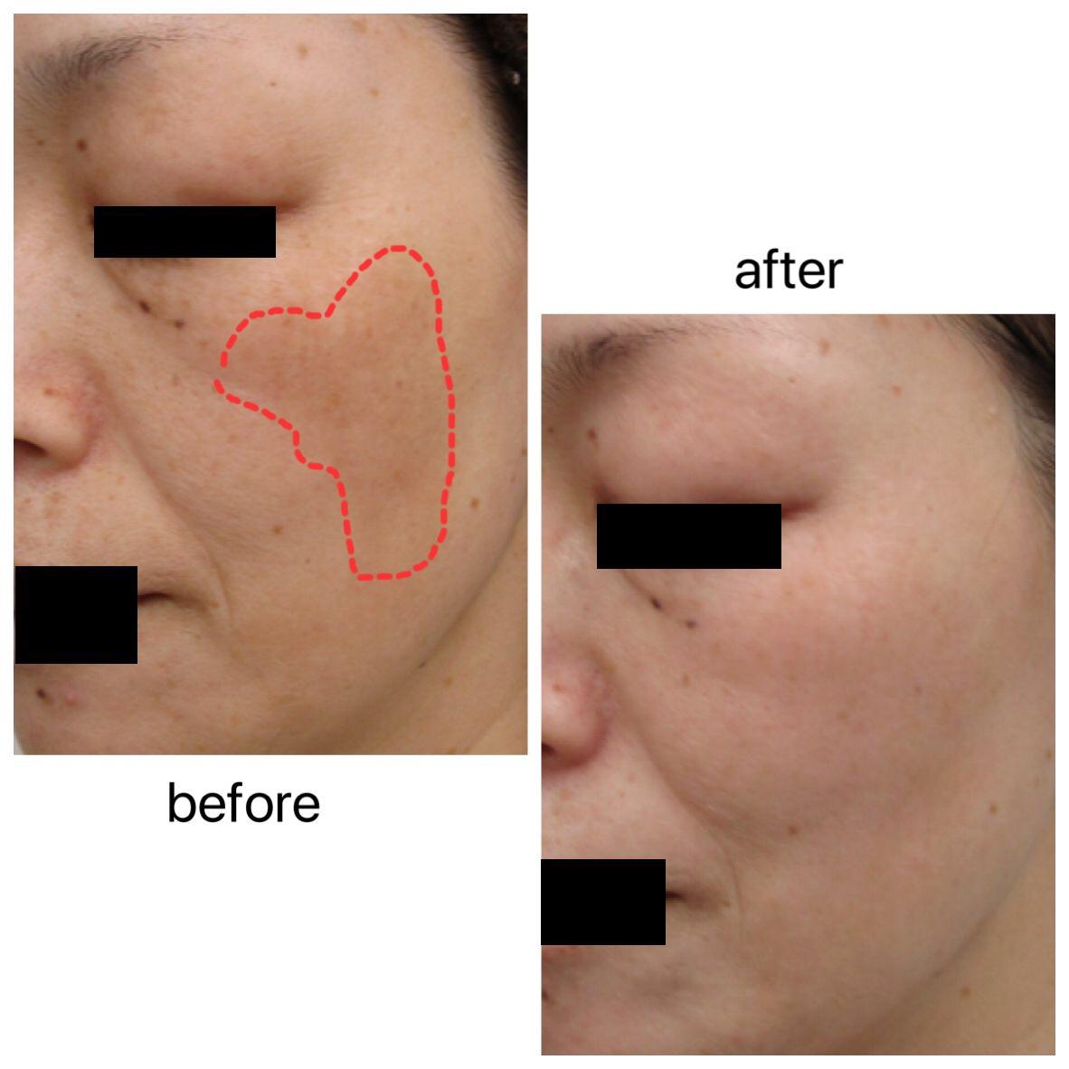 ゼオスキン 皮 剥け ゼオスキンマイルドコースの皮剥けはどの程度?半年の経過と効果を紹...