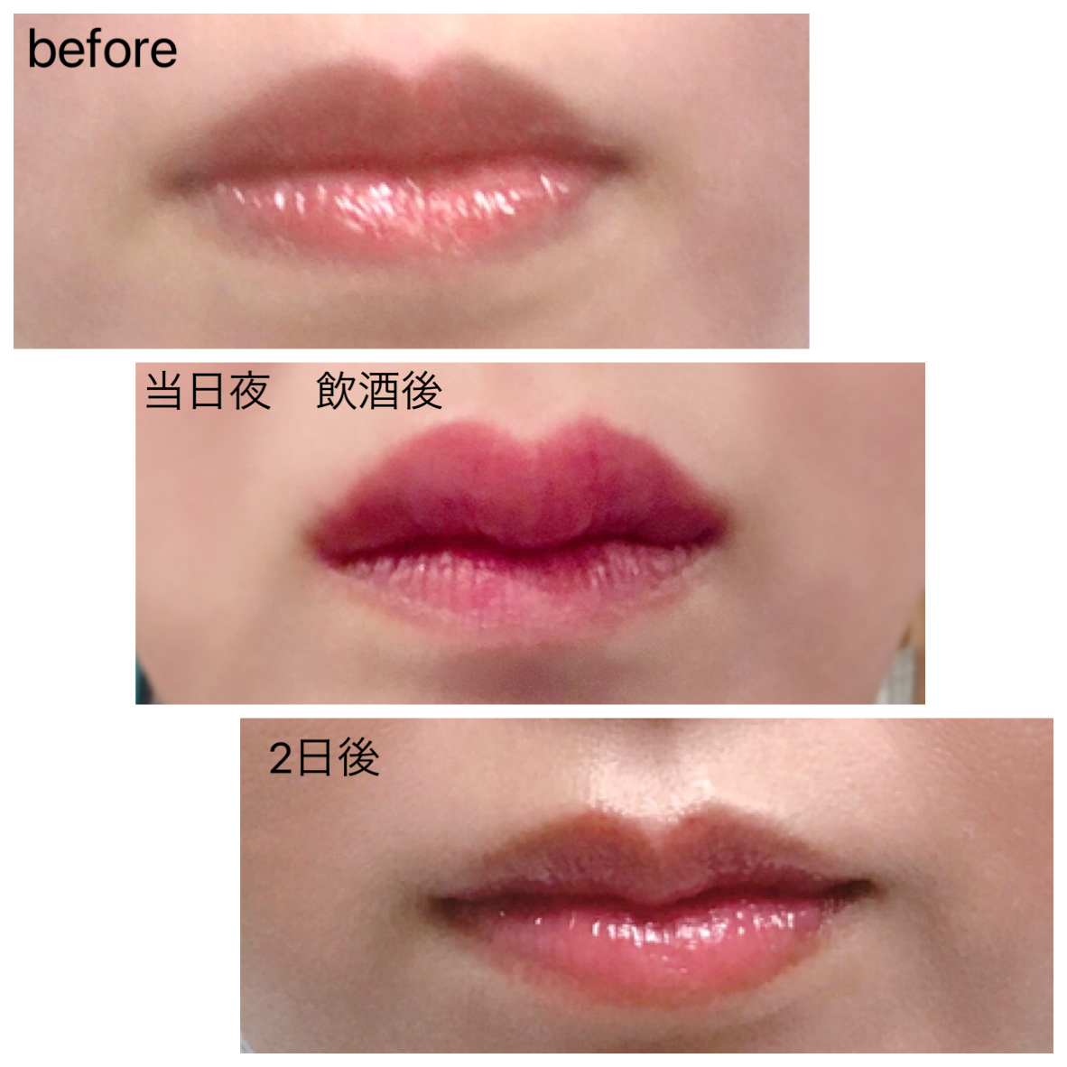 腫れ 唇 唇が腫れる原因・症状・治す方法・アレルギー・何科を受診すればいいのか